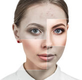 Square parts shows skin after treatment. Stock Image
