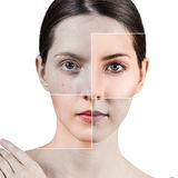Square parts shows skin after treatment. Stock Photo