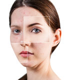Square parts shows skin after treatment. Royalty Free Stock Photo