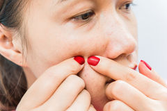 Squeezing pimple to clean the skin. Closeup Stock Image