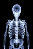 Squelette Photographie stock