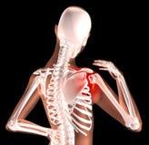 Squelette femelle avec douleur d'épaule Images stock