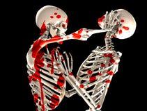 Squelettes sanglants de combat Image libre de droits