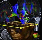 SR. proyección de imagen del cerebro Fotografía de archivo