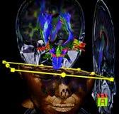 SR. proyección de imagen del cerebro Imágenes de archivo libres de regalías
