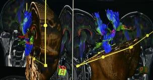 SR. proyección de imagen del cerebro Foto de archivo