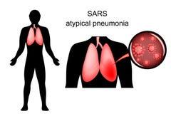 SRAS poumons enflammés et l'agent causatif Image stock