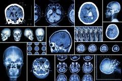 Ställ in samlingen av hjärnsjukdomen (cerebral infarkt, den Hemorrhagic slaglängden, hjärntumöret, diskettherniation med ryggmärg royaltyfria bilder