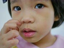 Stäng sig av liten asiat behandla som ett barn upp flickan som skrapar på hennes allergiska framsida, som den fick rashes som gör arkivbilder