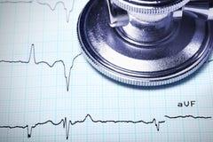 Stäng sig upp av en stetoskop på en ECG. Royaltyfri Foto