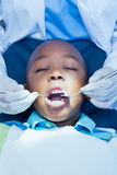 Stäng sig upp av pojken som har hans tänder att undersökas Fotografering för Bildbyråer