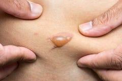 Stäng sig upp blåsan från skållning på huden Arkivbild
