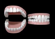 stängda gummin öppnar tänder Arkivbild