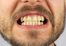Stängda mänskliga tänder grinar, closeupen arkivbild