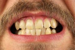 Stängda mänskliga tänder grinar, makroen royaltyfria foton