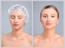 Stående av den kvinnliga framsidan, före och efter plastikkirurgi arkivbild