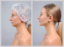 Stående av den kvinnliga framsidan, före och efter rhinoplasty arkivfoton