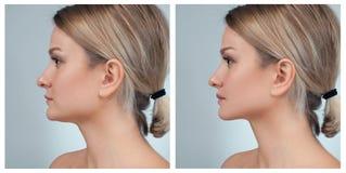 Stående av den kvinnliga framsidan, före och efter rhinoplasty royaltyfri bild