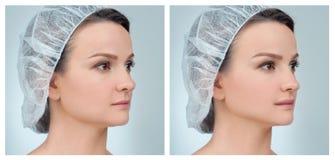 Stående av den kvinnliga framsidan, före och efter rhinoplasty royaltyfria bilder