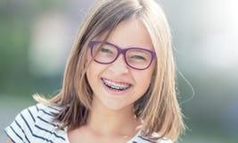Stående av den lyckliga le flickan med tand- hänglsen och exponeringsglas arkivfoton