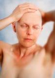 Stående av en bli skallig kvinna med cancer Arkivbilder