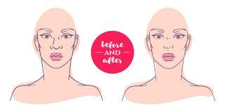 Stående av en kvinna före och efter med kosmetiska defekter stock illustrationer