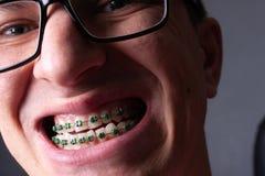 Stående av en man med krokiga tänder och metallhänglsen med grön gummibandnärbild Ung man med tand- orthodontic hänglsen arkivfoto
