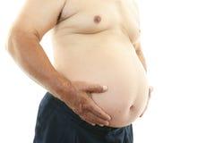 Stående av en sjukligt fet patient Arkivbild