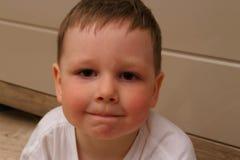 Stående av ett barn, en pojke, med röda kinder från temperaturen, från allergier barnet har en allergisk reaktion pojken har royaltyfria bilder