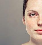 Stående för framsida för ung härlig fräknekvinna halv med sund hud Royaltyfria Bilder