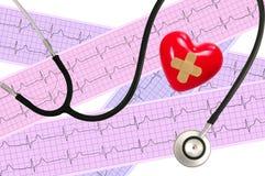 Stéthoscope médical et analyse de coeur, électrocardiogramme Image libre de droits