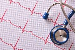 Stéthoscope sur la vue supérieure d'électrocardiogramme Photo libre de droits