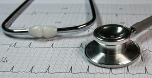 stéthoscope sur le cardiographe photo stock