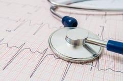 Stéthoscope sur le diagramme d'ECG (électrocardiogramme) Images libres de droits