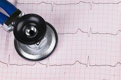 Stéthoscope sur le graphique de l'électrocardiogramme ECG stéthoscope réglé d'argent de médecine de mensonges de concept Fond de  Image stock