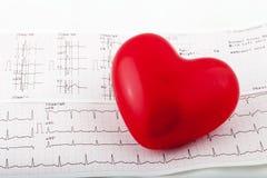 Stéthoscope sur un diagramme de l'électrocardiogramme (ECG) Photographie stock