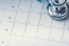 Stéthoscope sur un document imprimé de moniteur de coeur Diagramme et stéthoscope d'électrocardiogramme Image libre de droits