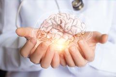 Stötta sunt av hjärnan av patienten arkivfoto