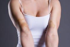 Stłuczenia na kobiet rękach, ręki z rozległym krwiakiem fotografia royalty free
