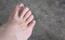 Stłuczenia na kobiety palec u nogi obraz stock