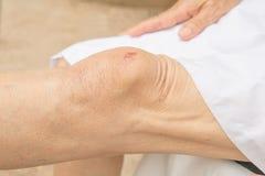 Stłuczenia na kolanach w kobietach zdjęcie stock