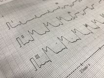 ST elevation on ECG paper. Close up ST elevation in leadI ll, lll on ECG paper stock photos