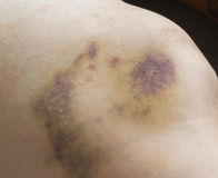 Stłuczenia na kobiety nodze Obraz Stock