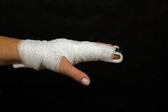 Stabilization of broken finger Stock Images