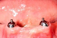 Dental stabilization system. Stabilization system of lower dental prosthesis Stock Photos