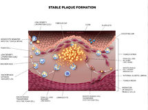 Stable plaque formation, Atherosclerosis Royalty Free Stock Photography