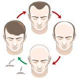 Stadien des Haarausfalls, der Behandlung und der Versetzung Stockbilder