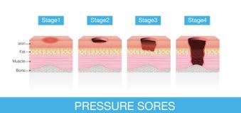 Stadien von Druck-Wunden stock abbildung