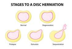 Stadien zu einem Diskette herniation lizenzfreie abbildung