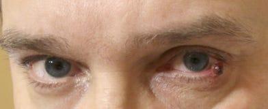STADSSJUKHUSET, NEFTEYUGANSK, RYSSLAND - JULI 15, 2018: Hemolymphangioma eller lymphangioma på den underlägsna ögonlocket av en u arkivfoto